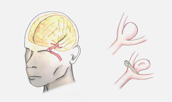 Hemorragia Subaracnoidea y Aneurismas Cerebrales
