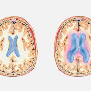 Hidrocefalia Normotensiva del Adulto (Síndrome de Hakim Adams)