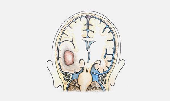 Metástasis cerebrales