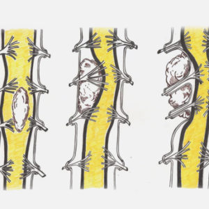 Tumores espinales